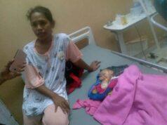 Bayi Usia 10 Bulan Alami Usus Terurai Keluar, Akhirnya Dirawat di RSUD Banten
