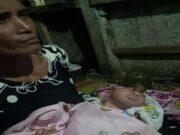 Bayi Lahir Tanpa Tempurung Kepala di Pandeglang