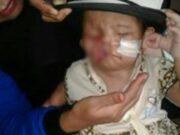 Terlahir Cacat di Bagian Wajah, Bayi Laura Butuh Pertolongan