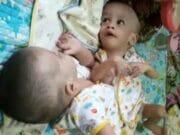 Bayi Kembar Siam di Tangerang Segera Operasi